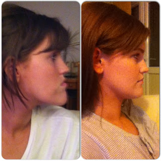 2 right side profile after double jaw surgery orthognathic surgery maxillofacial jaw surgery underbite