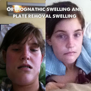 5. swelling face orthognathic blog plate removal surgery screws oral surgery maxillofacial jaw surgery