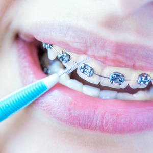 Problems with Braces