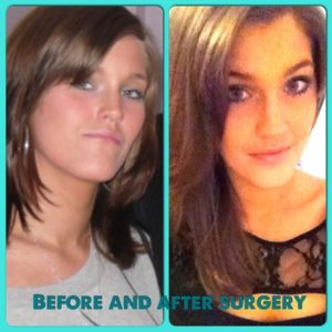 before and after orthognathic surgery jaw surgery oral surgery corrective jaw surgery underbite maxillofacial surgery surgery cost stefanie grant