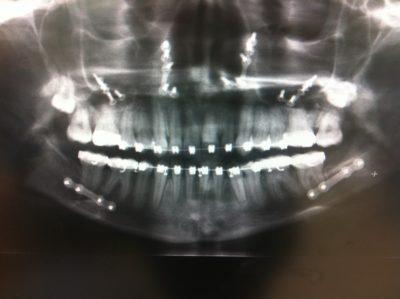 plates and screws orthognathic jaw surgery titanium plates and screws maxillofacial broken jaw xray