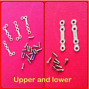 plates and screws titanium orthognathic blog plate removal surgery screws oral surgery maxillofacial jaw surgery