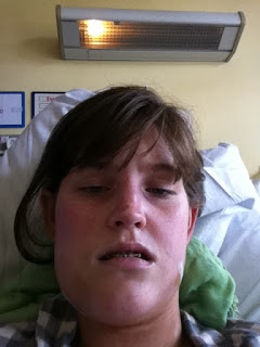 swelling jaw surgery