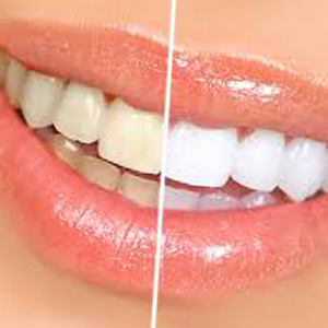 How to Naturally Whiten your Teeth after Surgery